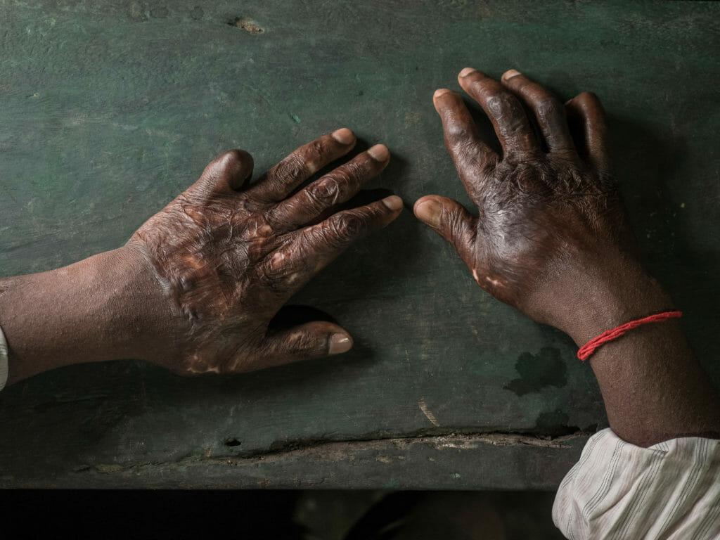 Hands of a burned shipbreaking worker, photography Studio Fasching