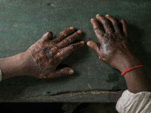 Hands of a burned shipbreaking worker, photography Studio Fasching